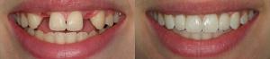 protezirovanie-zubov-Tiumen