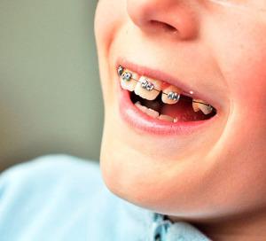 detskii-ortodont-tiumen