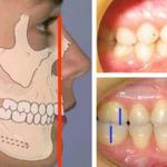 Дистальный прикус детская ортодонтия