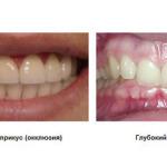 Глубокий прикус детский ортодонт