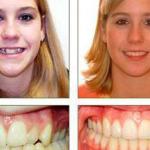 До и после ношения брекетов