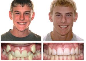 vyravnivanie-zubov-breketami